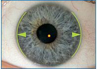 Нецентральность оптической оси глаза