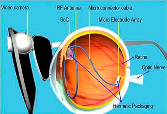 Бионический глазной имплант
